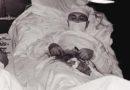 Ainuke võimalus ellu jääda – kirurg opereeris ennast ise!