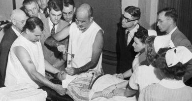 Lobotoomia – häbiväärseim peatükk psühhiaatria ajaloos